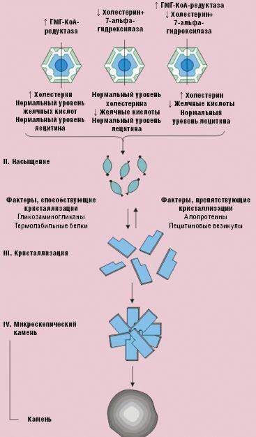Рис. 9. Механизм холелитиаза