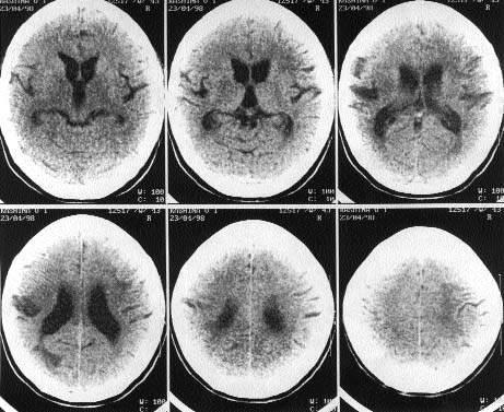 Рассеянный склероз | #04/99 | Журнал «Лечащий врач»