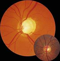 Проявления глаукомы